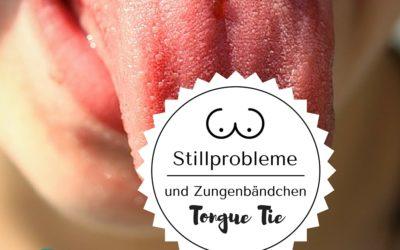 Stillprobleme -verkürztes Zungenbändchen beim Baby